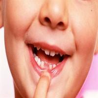 Diş Çıkması