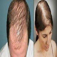 Saçının Kel Olması